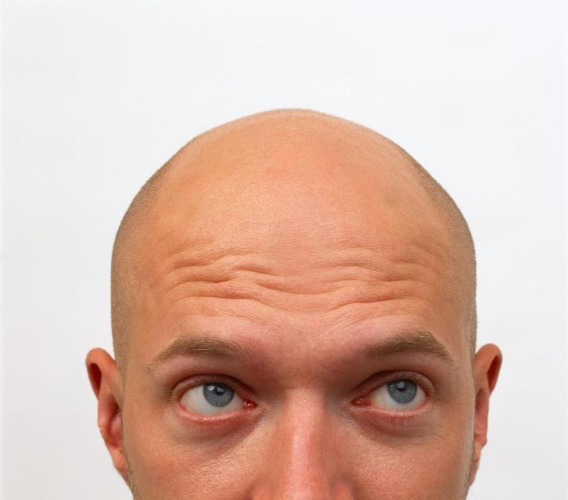 bald1.jpg